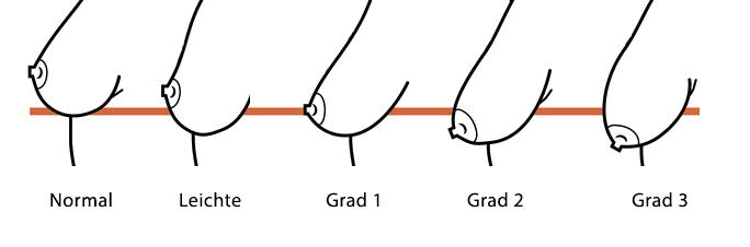 Bruststraffung Ptosis